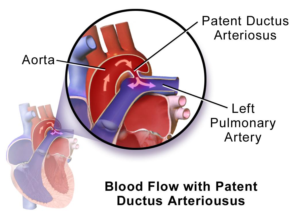 Patent ductus arteriosus original