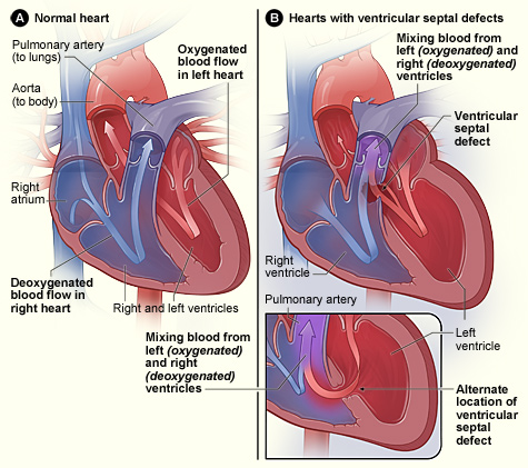 Congenital heart defect original